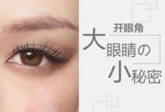 上海开眼角手术,开眼角让你的眼